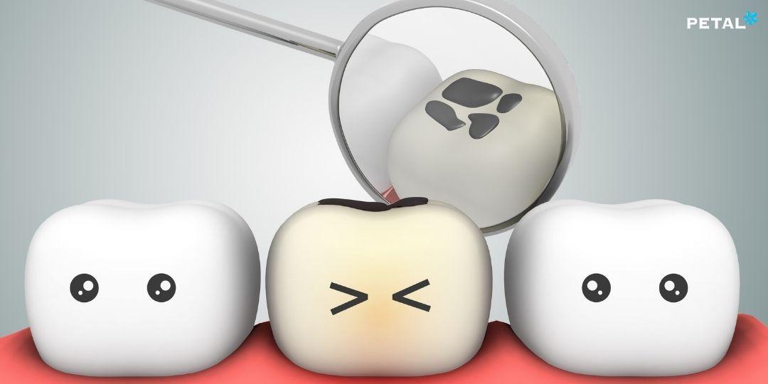 Sâu răng có nhiều nguyên nhân như: vệ sinh, men răng, ăn uống...